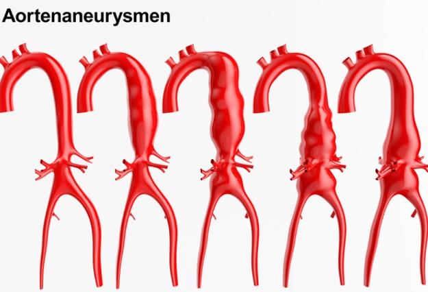 Aortenruptur: Lebensgefahr bei Ruptur der Hauptschlagader | Zaronews
